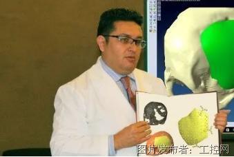 生命速度!海克斯康逆向与建模技术精密重构患者颅骨